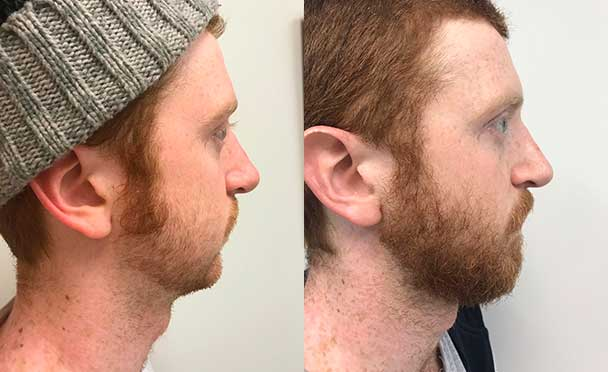 RHINOPLASTY BEFORE AND AFTER PHOTOS - Male, patient 18 (right  side view)