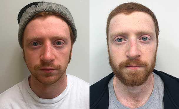 RHINOPLASTY BEFORE AND AFTER PHOTOS - Male, patient 18 (front view)