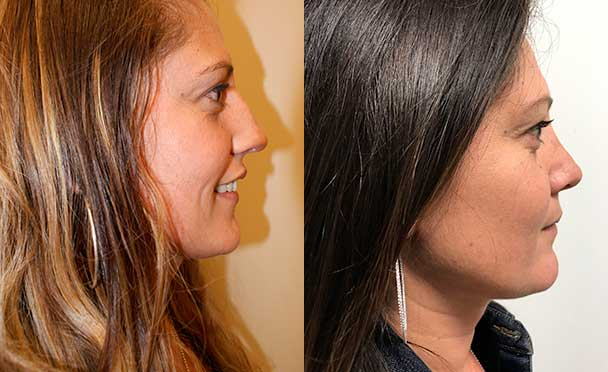 RHINOPLASTY BEFORE AND AFTER PHOTOS - Female, patient 19 (right side view)