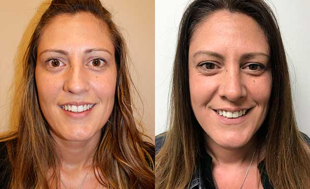 patient before and after Rhinoplasty