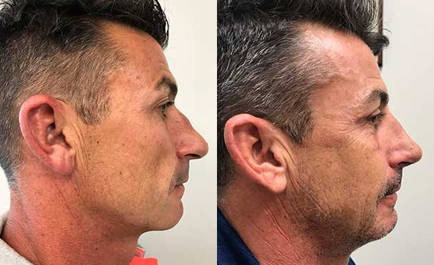 RHINOPLASTY BEFORE AND AFTER PHOTOS - Male, patient 20 (right side view)