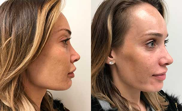 RHINOPLASTY BEFORE AND AFTER PHOTOS - Female, patient 21 (right side view)