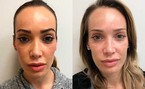 RHINOPLASTY BEFORE AND AFTER PHOTOS - Female, patient 21(front view)