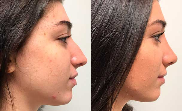 RHINOPLASTY BEFORE AND AFTER PHOTOS - Female, patient 22 (right side view)