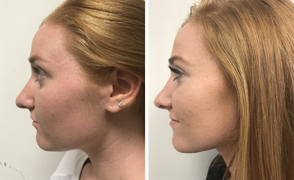 RHINOPLASTY BEFORE AND AFTER PHOTOS - Female, patient 24 (left side view)