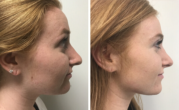 RHINOPLASTY BEFORE AND AFTER PHOTOS - Female, patient 24 (right side view)