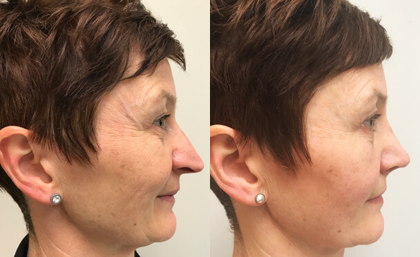 RHINOPLASTY BEFORE AND AFTER PHOTOS - Female, patient 25 (left side view)