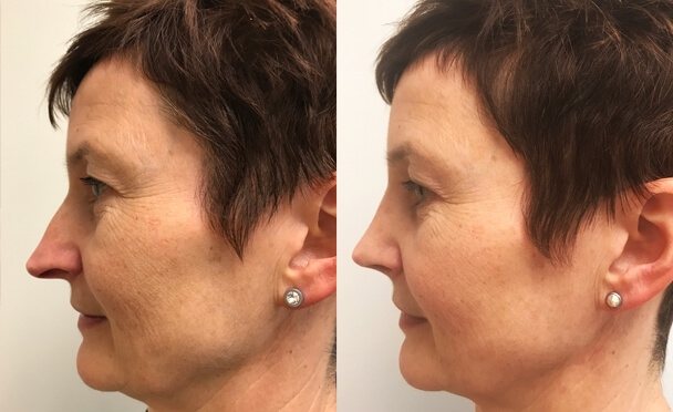 RHINOPLASTY BEFORE AND AFTER PHOTOS - Female, patient 25 (right side view)