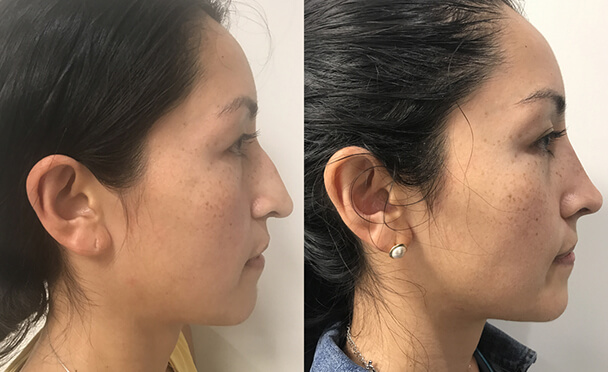 RHINOPLASTY BEFORE AND AFTER PHOTOS - Female, patient 26 (left side view)